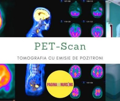pet-scan tomografia cu emisie de pozitroni pagina de nursing