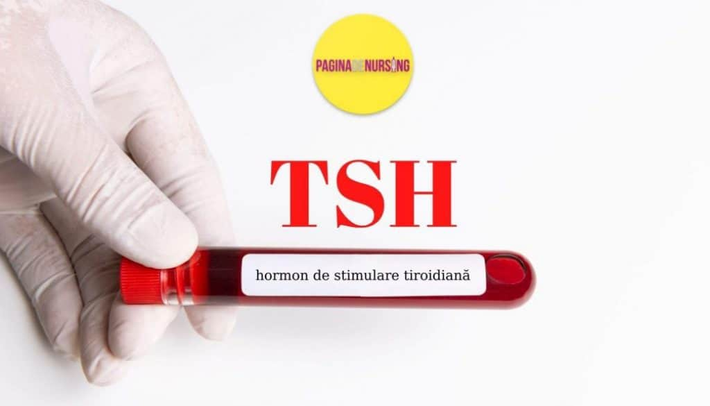 tsh analize medicale paginadenursing