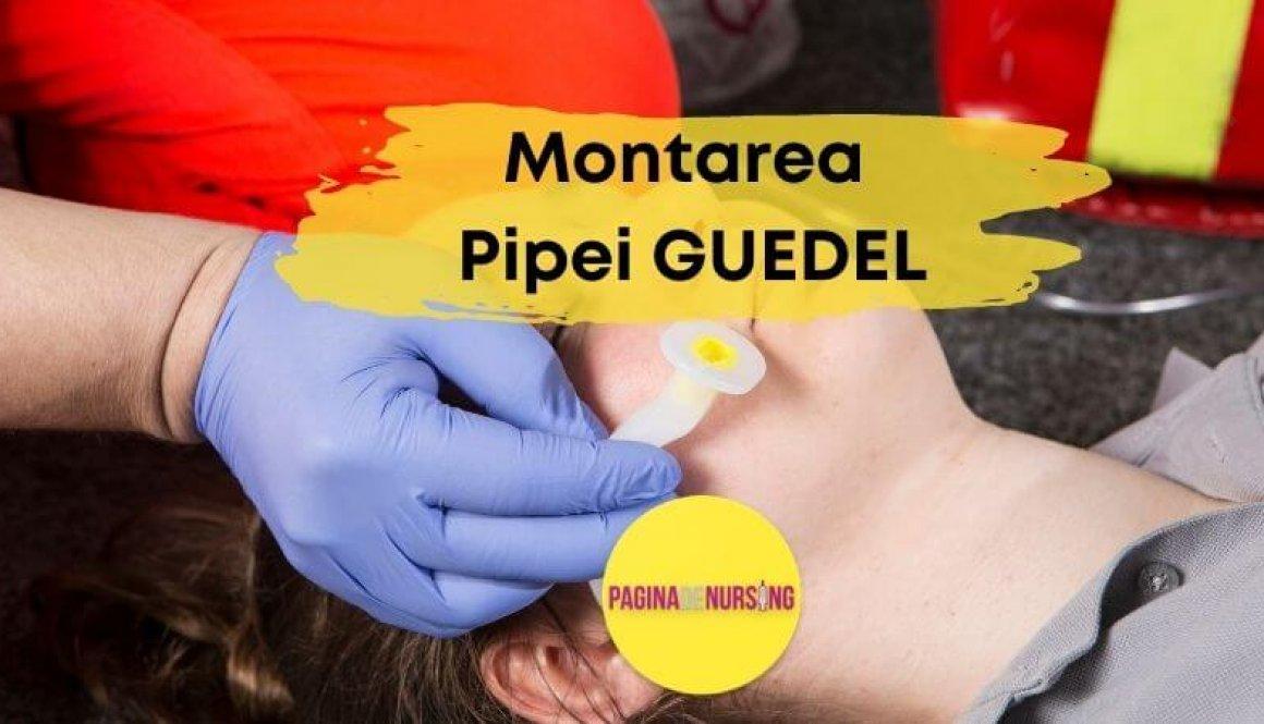 MONTAREA PIPEI GUEDEL paginadenursing