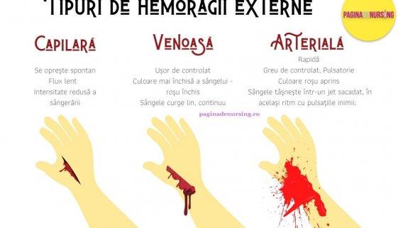 hemoragia tipuri de hemoragii externe pagina de nursing