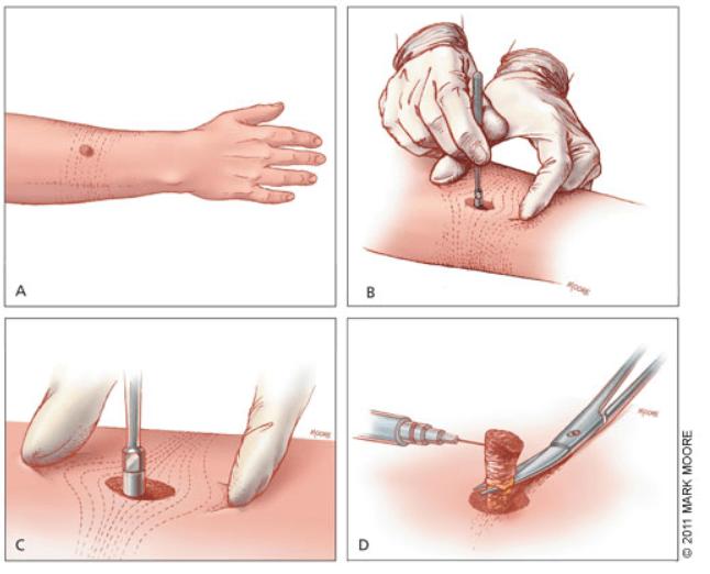 biopsia punch pagina de nursing amg