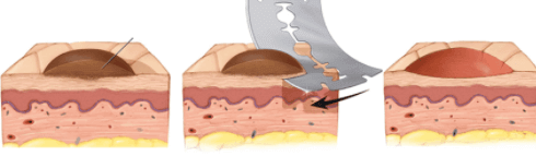 biopsia shave paginadenursing