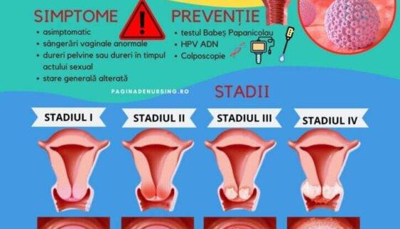 cancer de col uterin ingrijirea pacientei cu cancer de col uterin pagina de nursing patologie amg asistenti medicali
